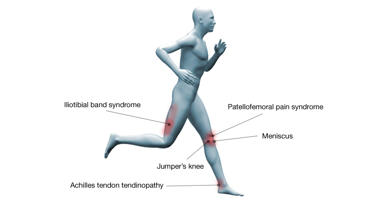 common-running-injuries